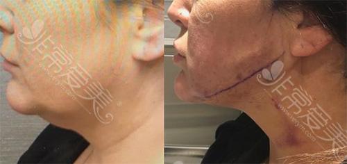 双下巴下颌缘吸脂手术即时