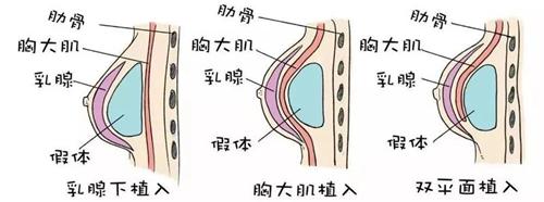 假体隆胸植入方式怎么选择