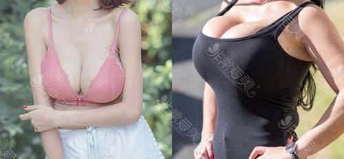 泰国隆胸对比图