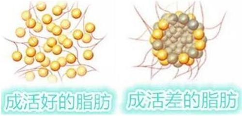 面部脂肪填充活性好的脂肪细胞