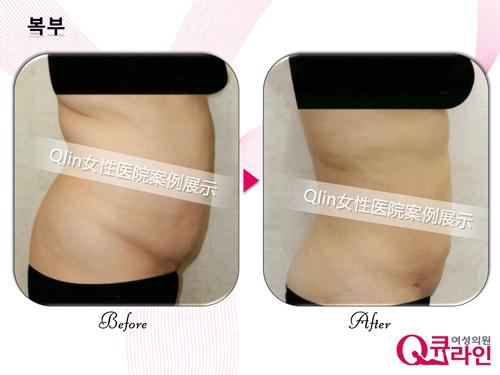 Qline女性医院腰腹吸脂前后对比图