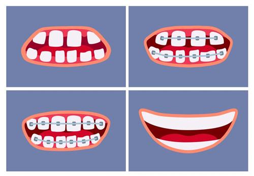 成人牙齿矫正过程