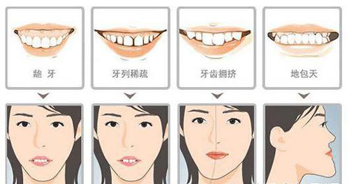 成人牙齿矫正适宜人群