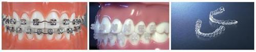 成人牙齿矫正正畸方式