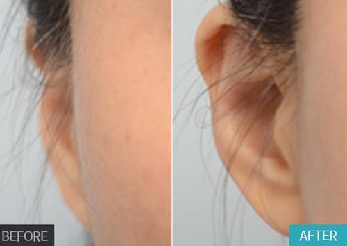 贴发耳矫正手术原理揭秘,正面看不到耳朵显脸大也能改善