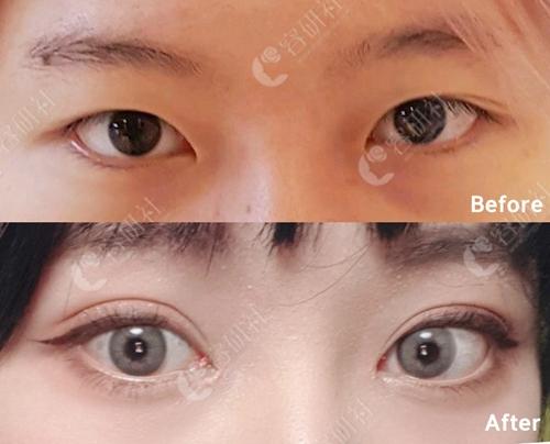 火速来看杭州格莱美拉双眼皮效果,和珠儿丽比谁家更值得选?