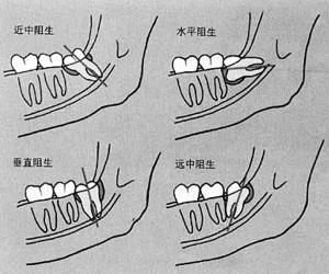 阻生齿类型