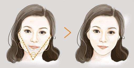 下颌角手术前后示意图