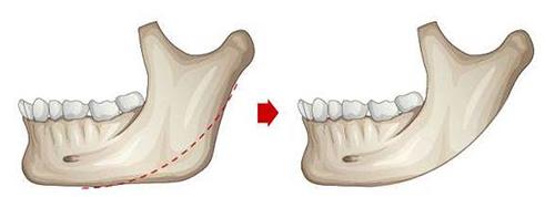 下颌角截骨示意图