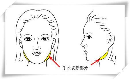 下颌角手术示意图