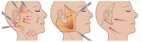 拉皮手术操作流程