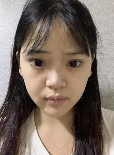 韩国爱她整形医院隆鼻术前照片