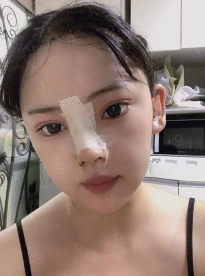 韩国爱她整形医院真人改善术后三天效果