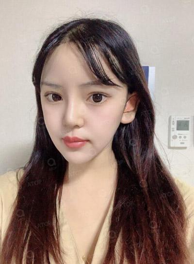 韩国爱她整形医院真人改善14天照片