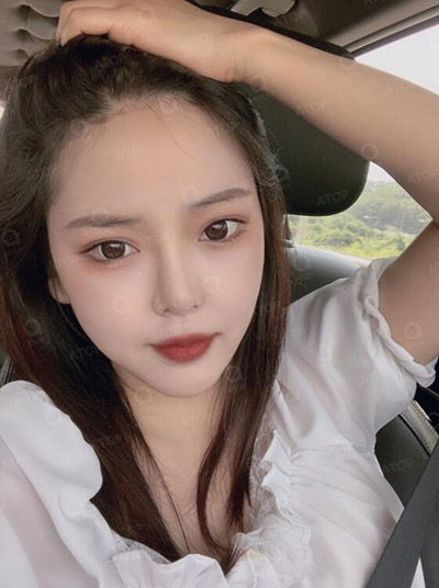 韩国爱她整形医院?真人改善一个月照片