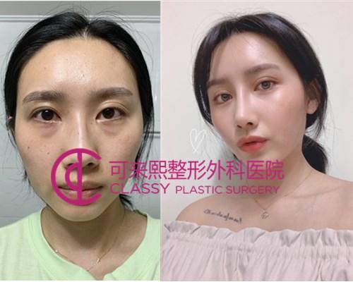 韩国可来熙整形自体脂肪面部填充案例