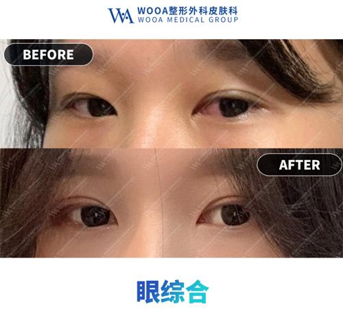 韩国妩阿WOOA整形外科眼综合案例