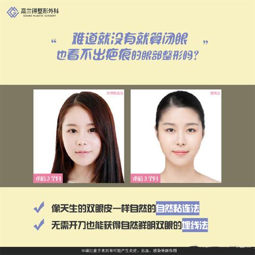 韩国高兰得整形医院双眼皮案例