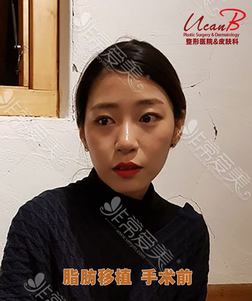 韩国Ucanb医院靠谱吗