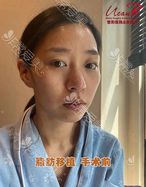 韩国Ucanb脂肪填充手术案例