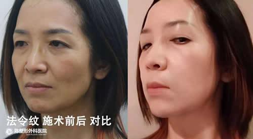 自体真皮再生术改善法令纹案例对比