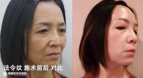 韩国陈整形外科改善法令纹案例