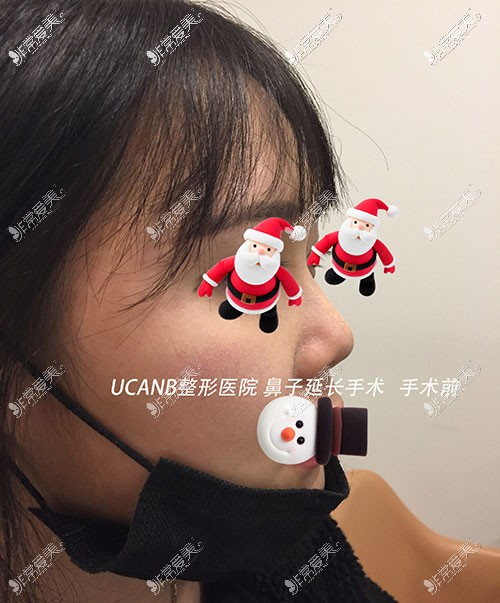 韩国Ucanb鼻子整形案例