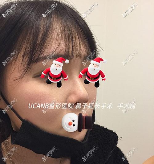 韩国Ucanb鼻整形对比照