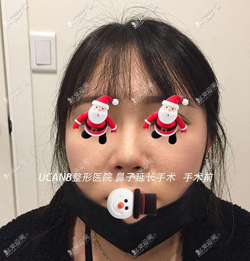 韩国Ucanb鼻整形照片