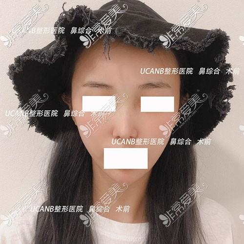 韩国Ucanb鼻综合手术