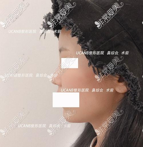 韩国Ucanb整形医院隆鼻手术