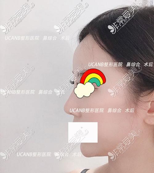 韩国ucanb隆鼻案例