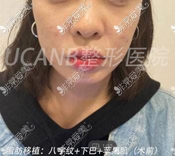 韩国Ucanb脂肪移植案例