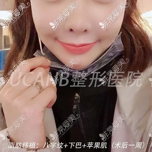 韩国八字纹填充案例照片