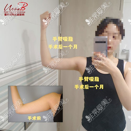 韩国Ucanb胳膊吸脂案例