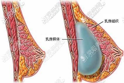 隆胸假体放置在乳腺下