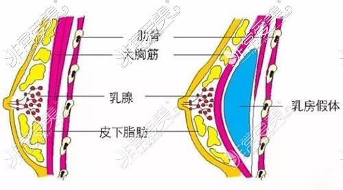 隆胸假体放置在胸大肌下