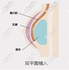 隆胸假体双平面植入