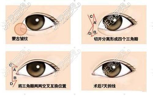 开眼角手术过程示意图