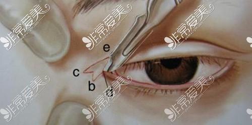 开眼角手术示意图