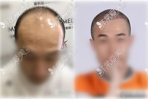 正视图 植发前后对比