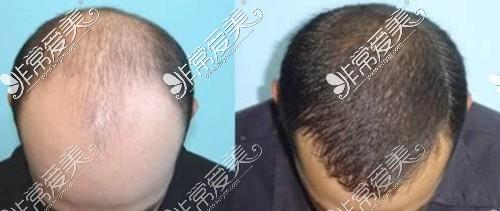 俯视图 植发前后对比