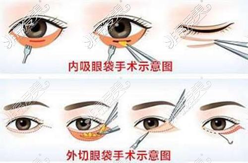 内切法外切法祛眼袋示意图
