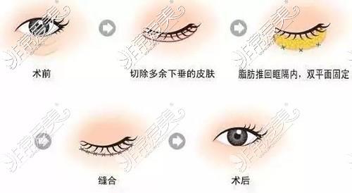 外切法眼袋示意图