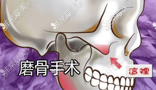 磨骨手术区域照片