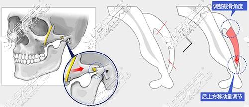 颧骨内推手术方法图