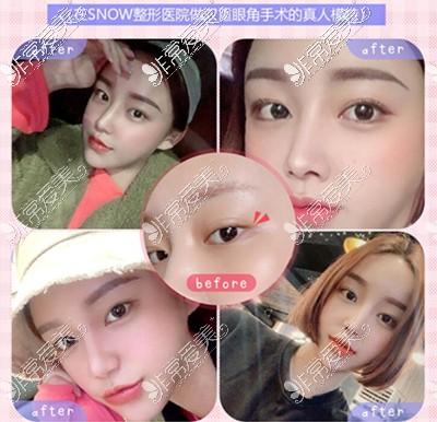 韩国snow整形外科开眼角案例图