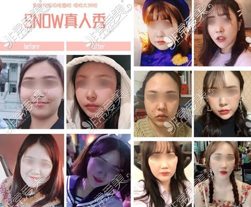 韩国snow整形外科面吸案例集锦