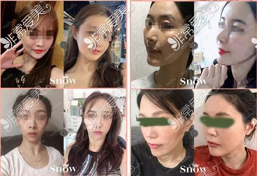 韩国snow整形外科面部填充案例图