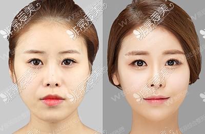 韩国原辰整形外科面部填充对比